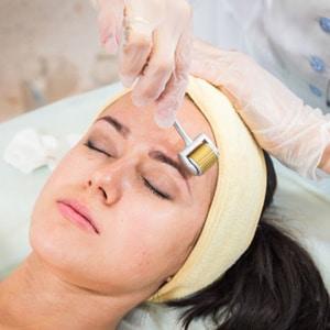 Derma Roller Facial
