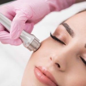 Micro Derma Abrasion Facial